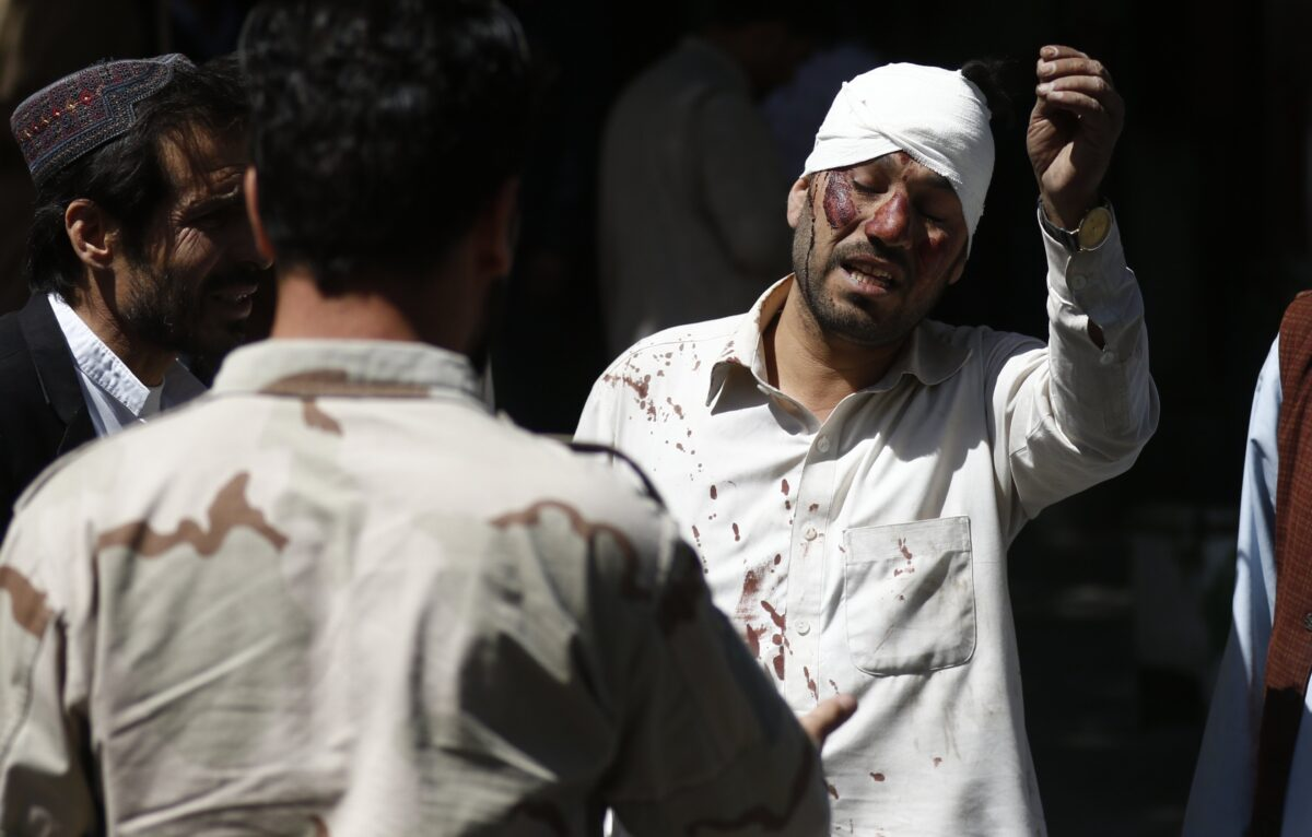 epa06000533 A man, who was injured in a suicide bomb attack, reacts at the scene in Kabul, Afghanistan, 31 May 2017. At least 50 people were killed or wounded in a suicide bomb attack near Kabul's diplomatic and government distric on 31 May, media reported. The number of casualties is expected to rise, media added. EPA/HEDAYATULLAH AMID