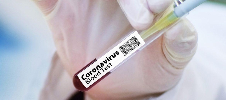 119 са новите случаи на COVID-19 у нас